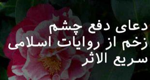 702863702863807-310x165 دعای دفع چشم زخم از روایات اسلامی سریع الاثر